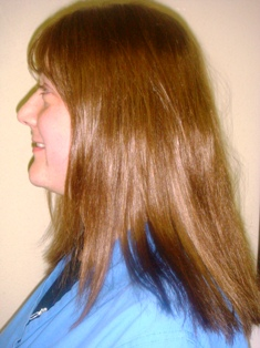 View more photos of Hair loss solutions