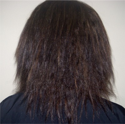 Chi Straightening System - Before Treatments